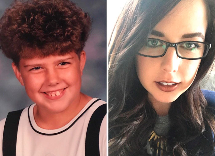 11—>30 Braces Were Good To Me