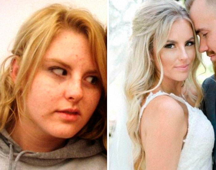 17-24, Went Through Horrible Cystic Acne, Lost 50 Lbs, Got Braces, And Dropped An Emotionally Abusive Boyfriend