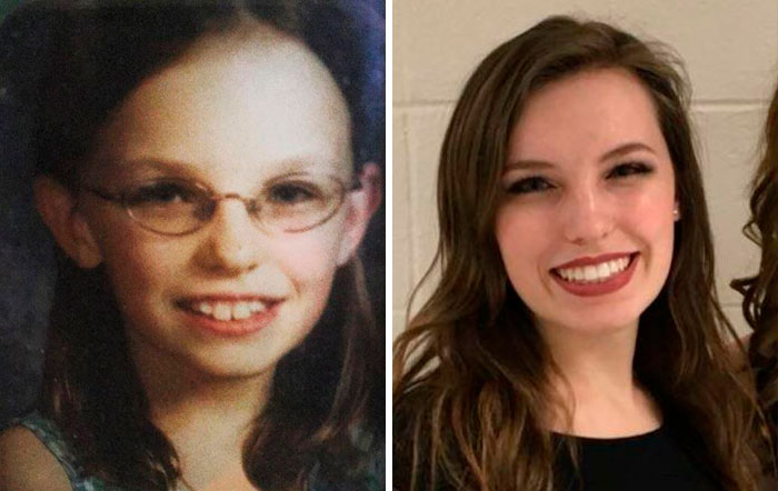 Age ~11 To 20 - I Owe A Lot To Contacts, Braces, Filling In My Eyebrows, And My Hairline Somehow Growing Forward